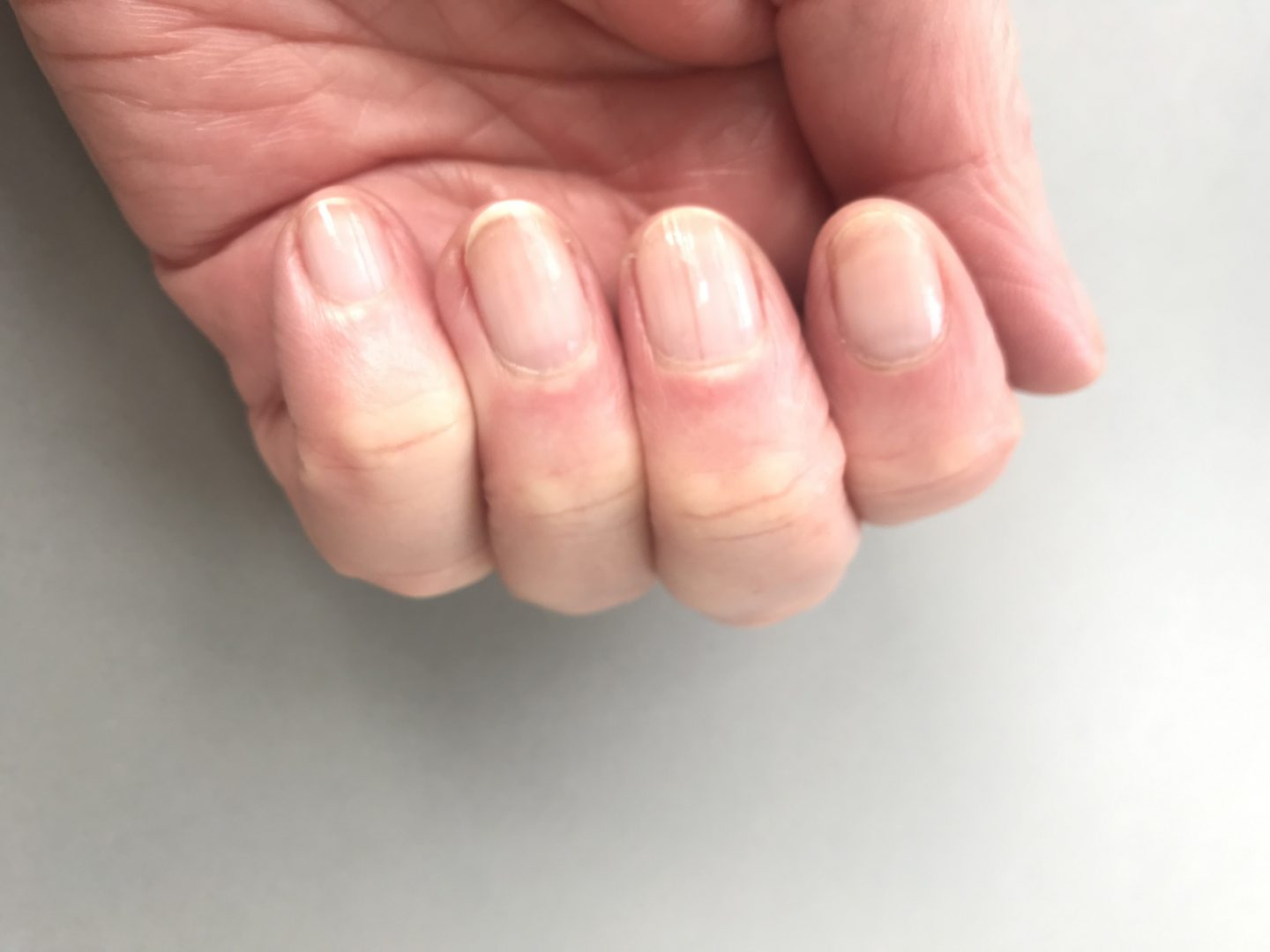 Healthy Nails with no polish after a nail detox.